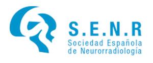 Sociedad Española de Neurorradiología (SENR)
